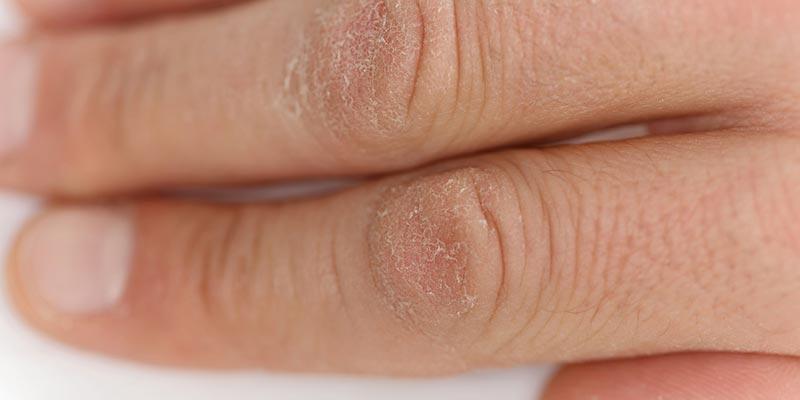 Dry-Skin-Tips