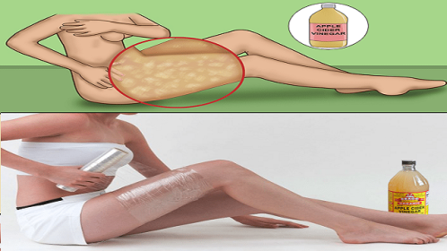 Make-The-Cellulite-Disappear-And-Lose-Weight-With-Apple-Cider-Vinegar