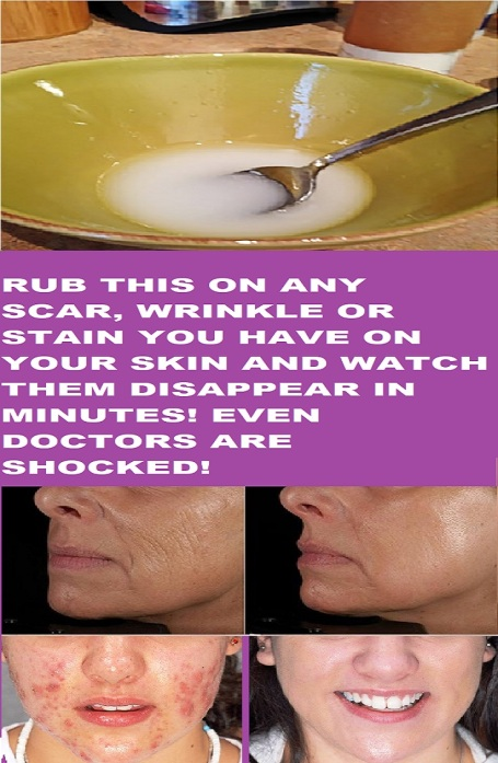 RUB-THIS-ON-ANY-SCAR-WRINKLE-OR-STAIN-YOU-HAVE-ON-YOUR-SKIN-AND-ENJOY-THEM-DISAPPEAR-IN-MINUTES-EVEN-DOCTORS-ARE-SHOCKED