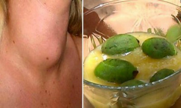 doctors-will-never-tell-heres-cure-thyroid-gland-just-one-ingredient (1)